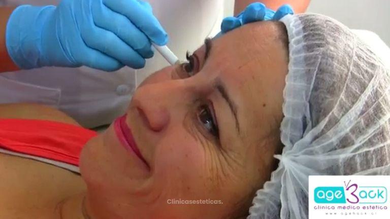Elimina las arrugas de forma natural