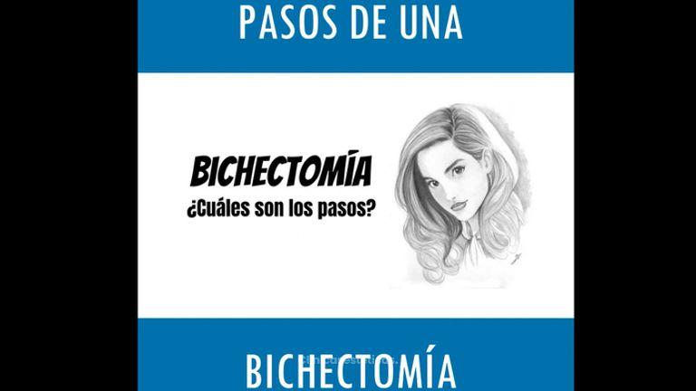 Bichectomía - Doctor Horacio Valdivia Meza