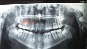 Tratamiento de brackets en Chile