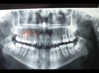 Conoce las ventajas de la ortodoncia