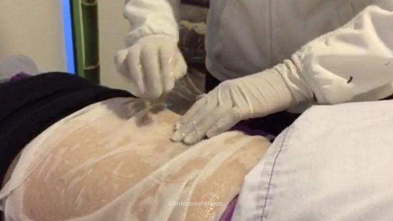 paciente criolipólisis