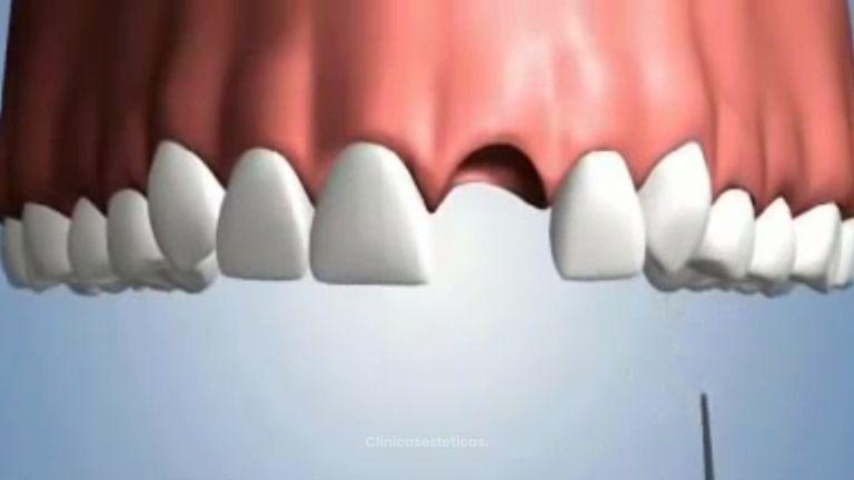 Tu solución para la pérdida de piezas dentales