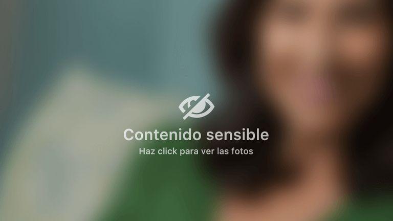 Indicaciones post Quirugicas en Abdominoplastia