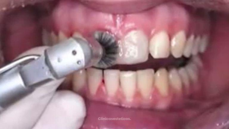 Consigue unos dientes más blancos