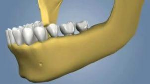 ¿Cómo se realiza una cirugía de implantes dentales?