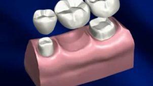 ¿Cómo se realiza un tratamiento de prótesis dentales?