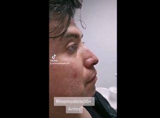 Rinomodelación - Dra. Katherin Ruiz Márquez