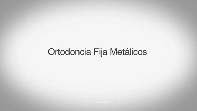 Fija Metalicos