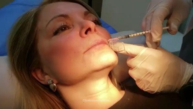 Ácido hialurónico - Clínica Doctor Flores Aqueveque
