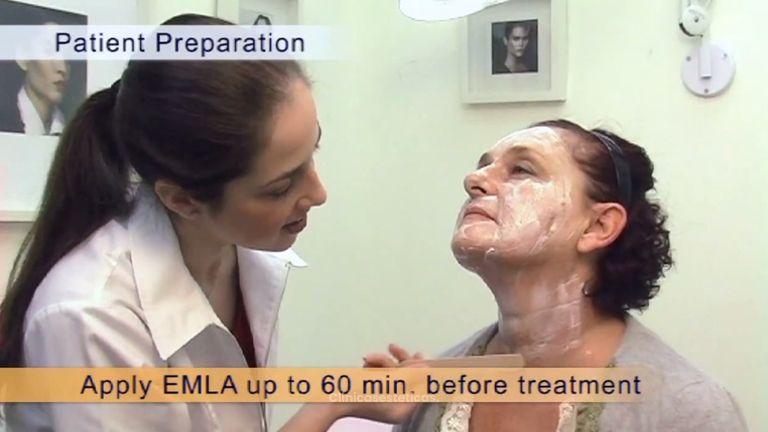 Reduce las arrugas y elimina las imperfecciones de tu piel