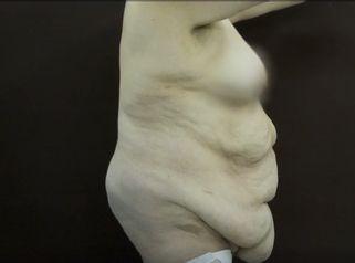 Cirugía Post Bariátrica