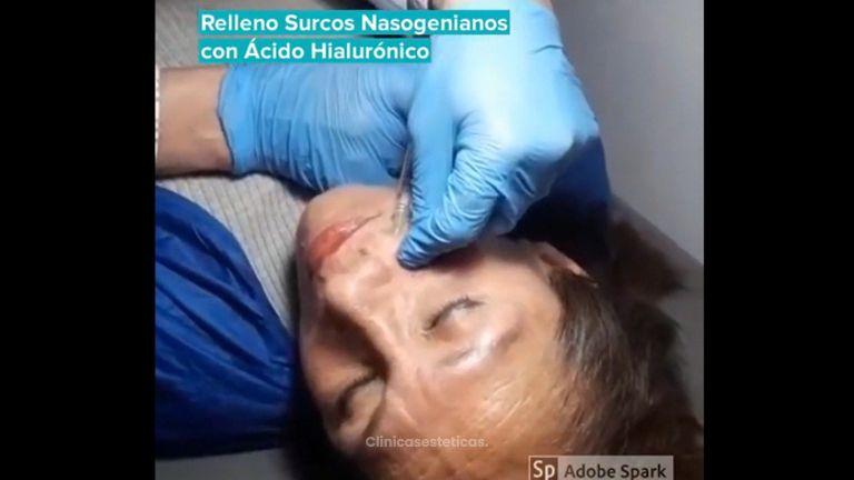 Relleno surcos nasogenianos - Dr Nicolas Adriazola