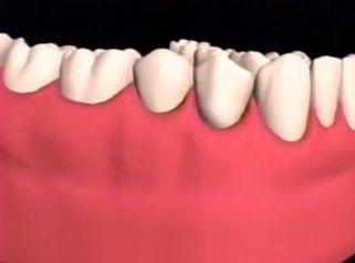 Coloca nuevos implantes y luce una mejor sonrisa