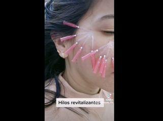Hilos tensores faciales - Dra. Katherin Ruiz Márquez