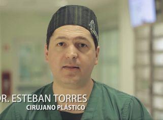 Liposucción realizada por el Dr. Esteban Torres Egaña