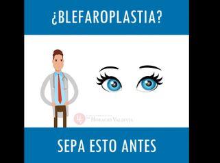 Blefaroplastia - Doctor Horacio Valdivia Meza