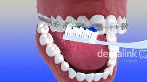 Limpieza bucal para pacientes con brackets