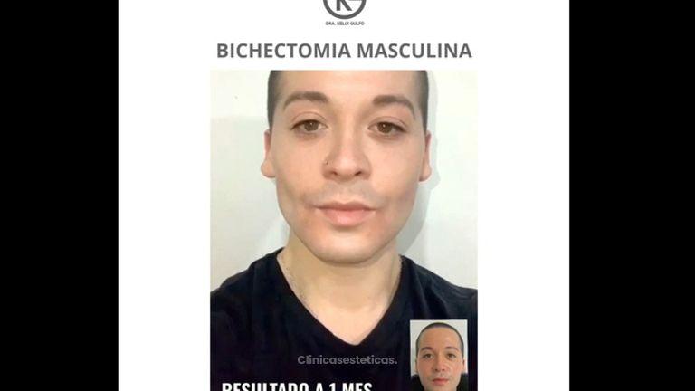 Bichectomía Masculina