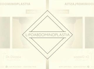 Lipoabdominoplastia - Cirugía Plástica Dieppa