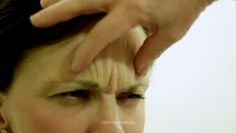 Elimina las arrugas y las líneas de expresión
