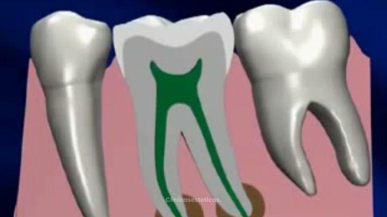 Lo que debes saber sobre la endodoncia