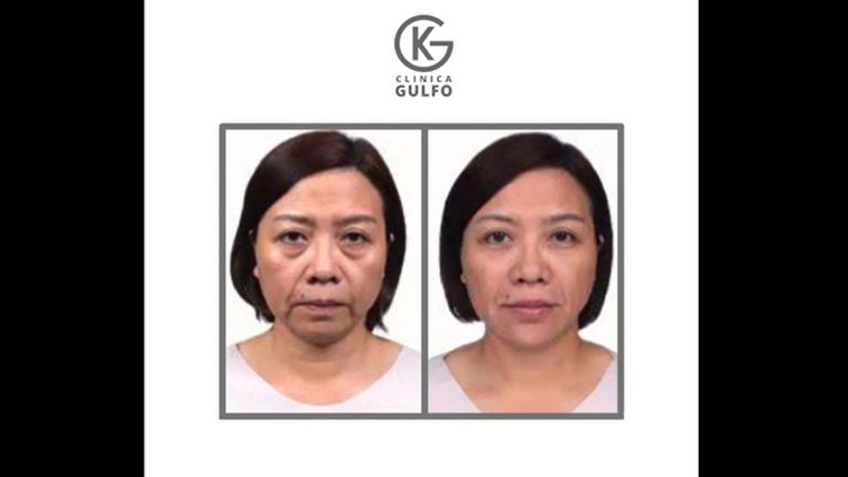Ácido hialurónico - Dra. Kelly Gulfo