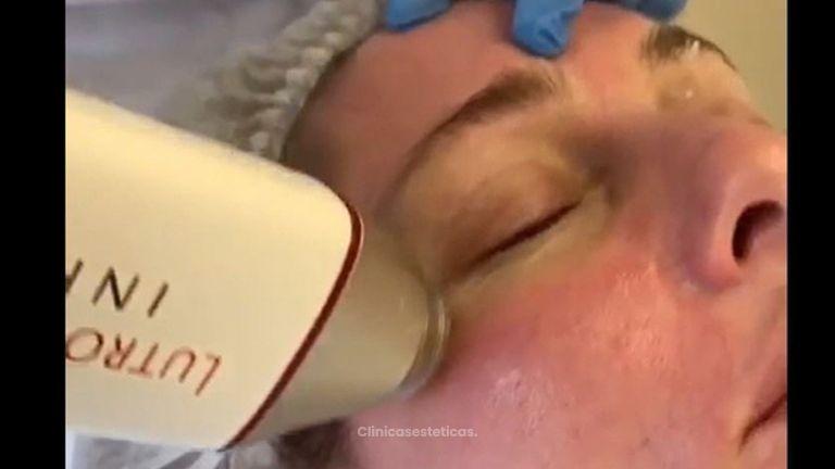 Tratamiento  Infini de Lutronic