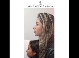 Armonización facial - Dra. Kelly Gulfo