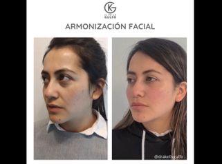 Rejuvenecimiento facial - Dra. Kelly Gulfo