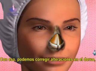 Elimina tus complejos de nariz