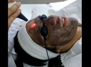 Terapia de Carbon-Laser o Laser Pell