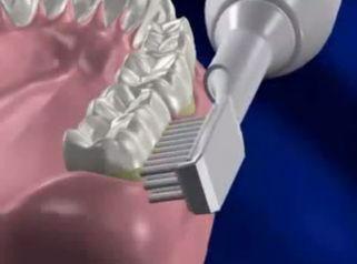 Cuida tu dentadura