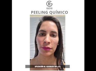 Peeling - Dra. Kelly Gulfo